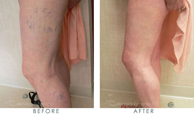 Sclerotherapy of leg spider veins at Nu Vela Esthetica,LosAngeles, CA
